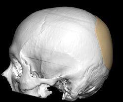 Skull Reshaping Picture 21a