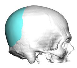 Skull Reshaping Picture 22a