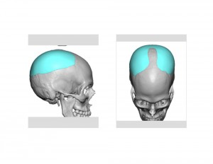 Skull Reshaping Picture 28a