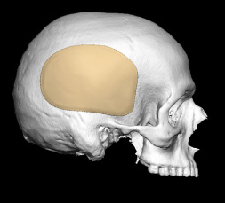 Skull Reshaping Picture 37a