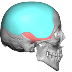 Skull Reshaping Picture 41a