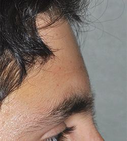 Aesthetic Forehead Surgery   Dr  Barry L  Eppley