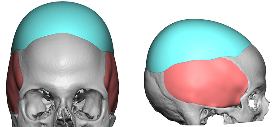 Large Heightening Custom Skull Imlpant design for Flat Head Dr Barry Eppley Indianapolis