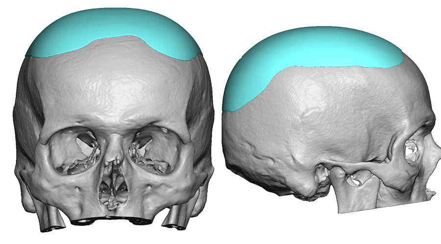 Small Heightening Skull Implant design Dr Barry Eppley Indianapolis