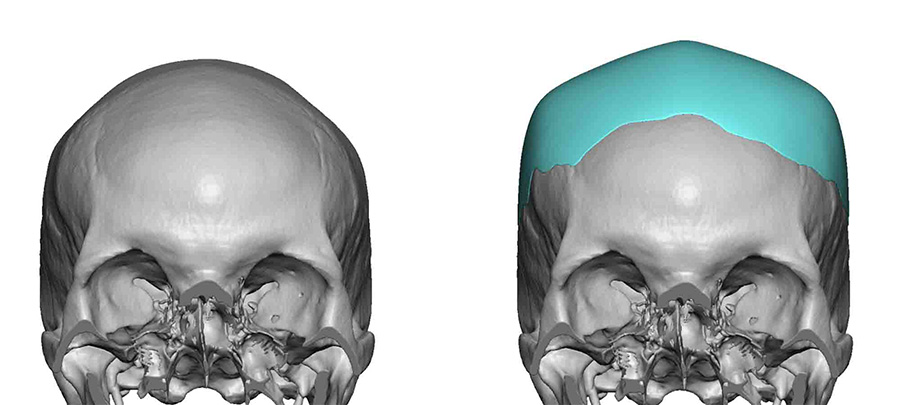 Square Custom Skull Implant design Dr Barry Eppley Indianapolis