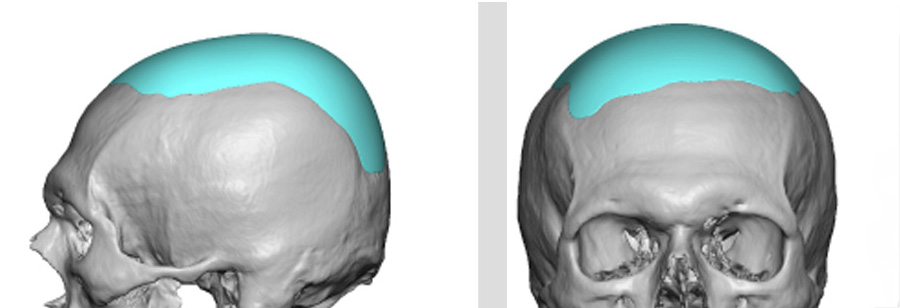 Thin Custom Skull Cap Implant design Dr Barry Eppley