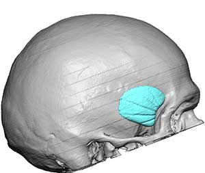 Standard Anterior Temporal Implants
