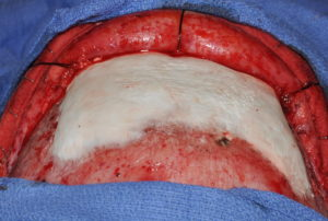 HA frontal cranioplasty after cement. application dr barry eppley indianapolis
