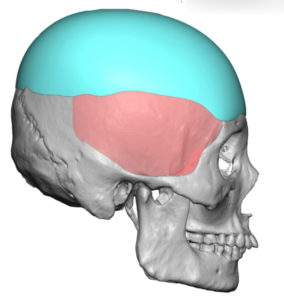 Custom Skull Implant 2 Dr Barry Eppley Indianapolis