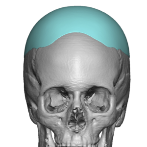Custom Skull Implant design 2 Dr Barry Eppley Indianapolis